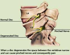 spinal degenaration