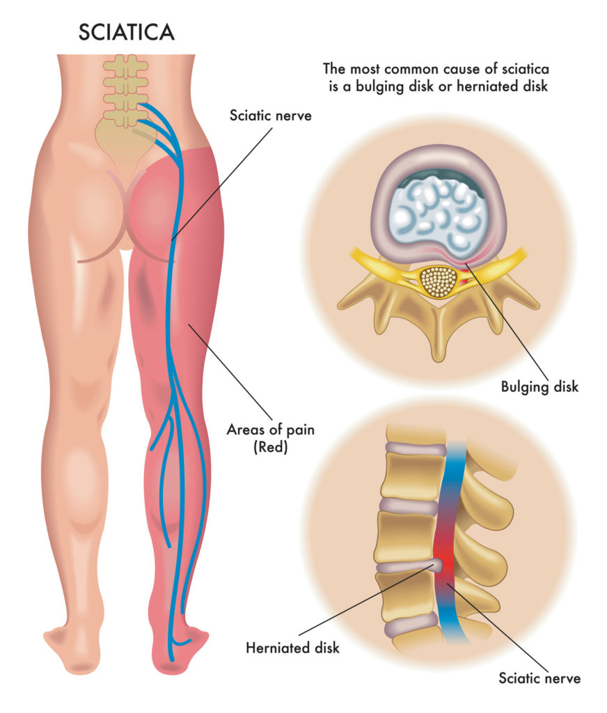 lower back and leg pain sciatica symptoms