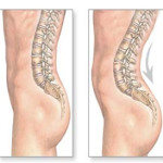 Treat That Threatening Lordosis Now Or Prepare To Go Under The Scalpel!